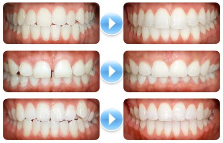 The Greatest Guide To Affordable Braces
